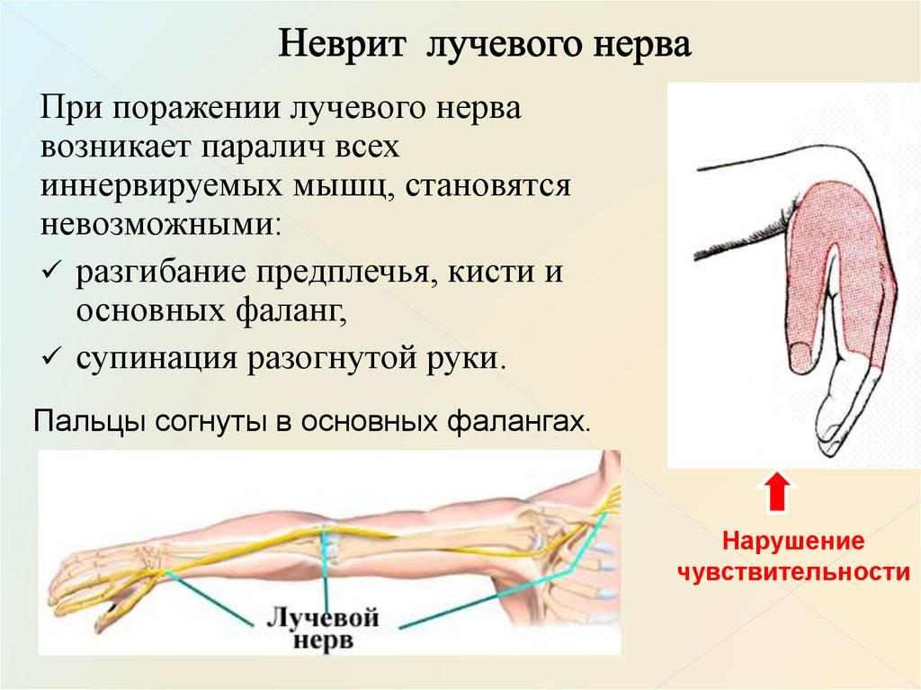 Неврит плечевого нерва: симптомы и лечение невралгии сустава