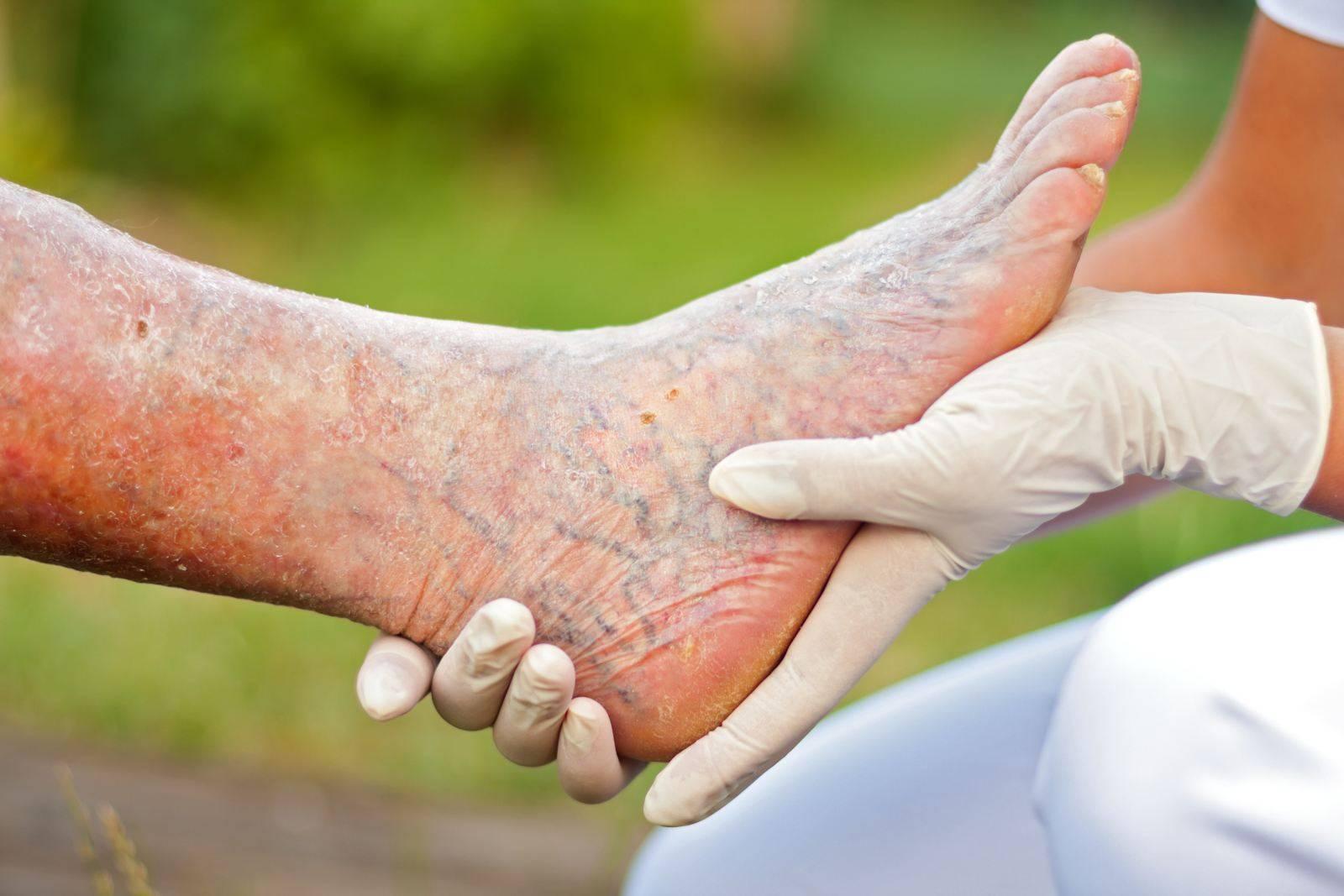 Экзема на ногах мази для лечения реальная медицина