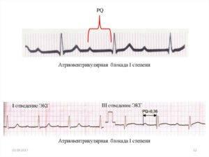 Нарушение проводимости сердца: причины, виды на экг, лечение