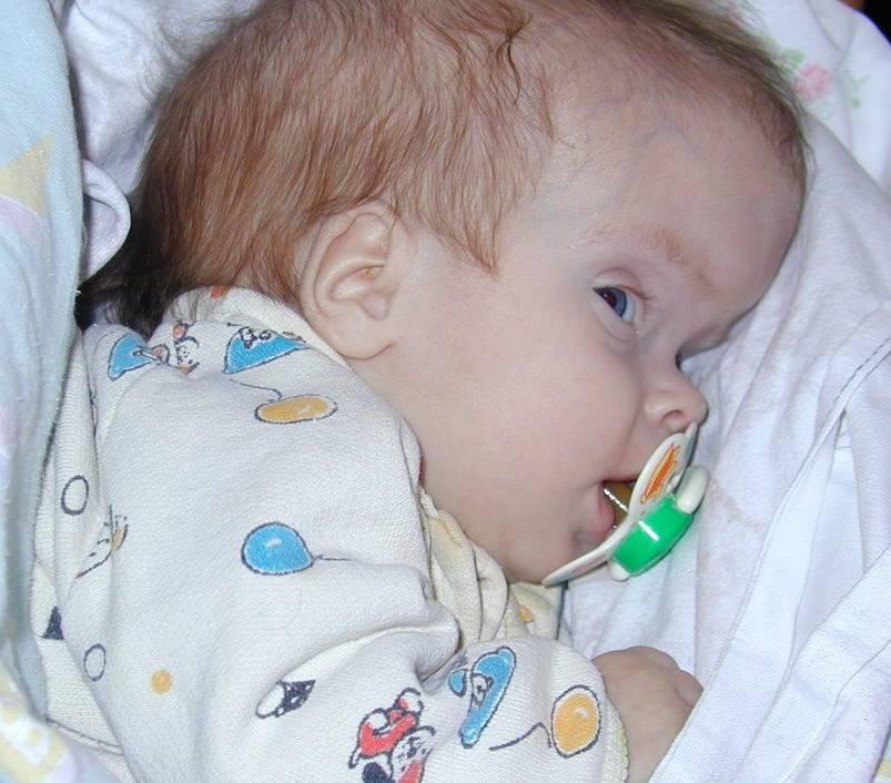 Энцефалопатия неуточненная что это такое у детей
