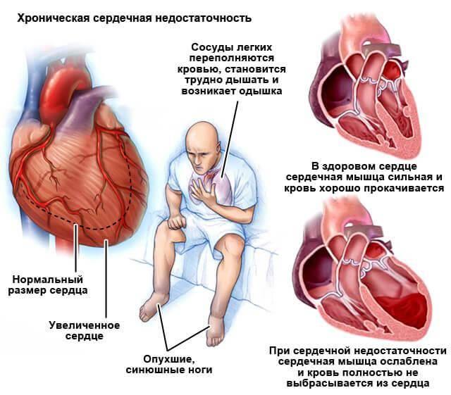 Травы от одышки при сердечной недостаточности