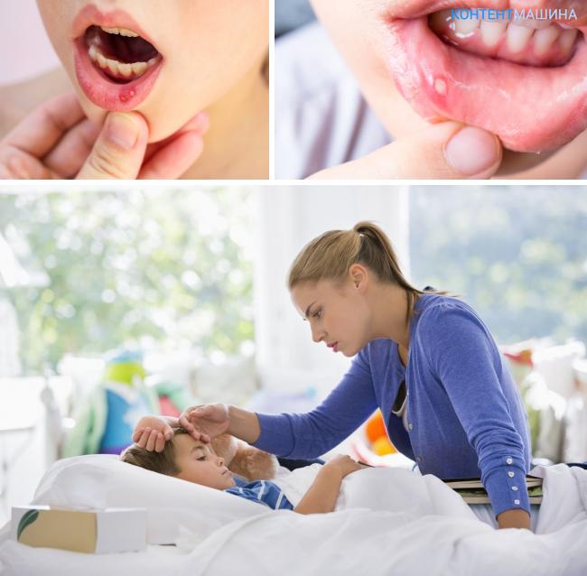 Герпесный стоматит у детей его признаки и способы лечение