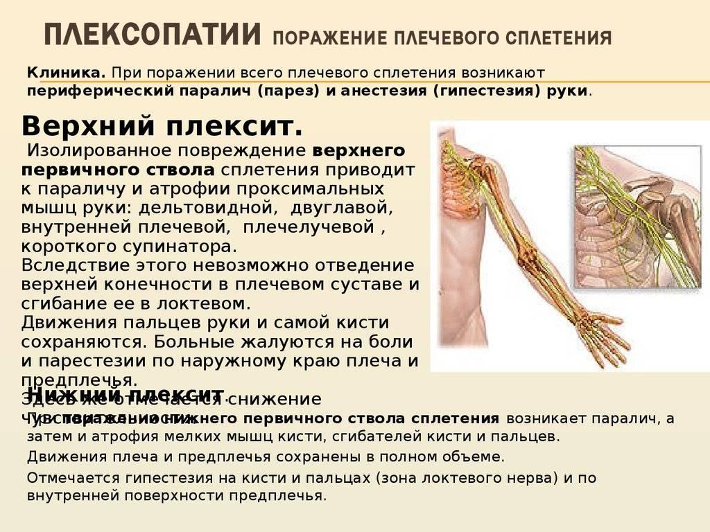 Неврит: лечение и симптомы опасного заболевания