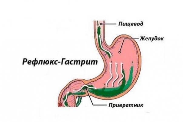 Питание при гэрб (рефлюкс эзофагите пищевода): меню на каждый день