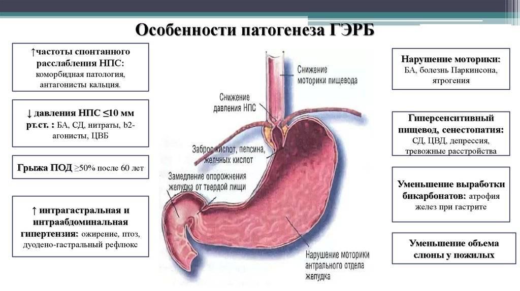 Аутоиммунный гастрит симптомы и лечение - лечимпросто