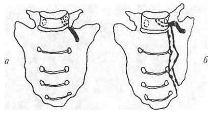 3 последствия перелома крестца - как лечить и как долго заживает? | spravki1.ru