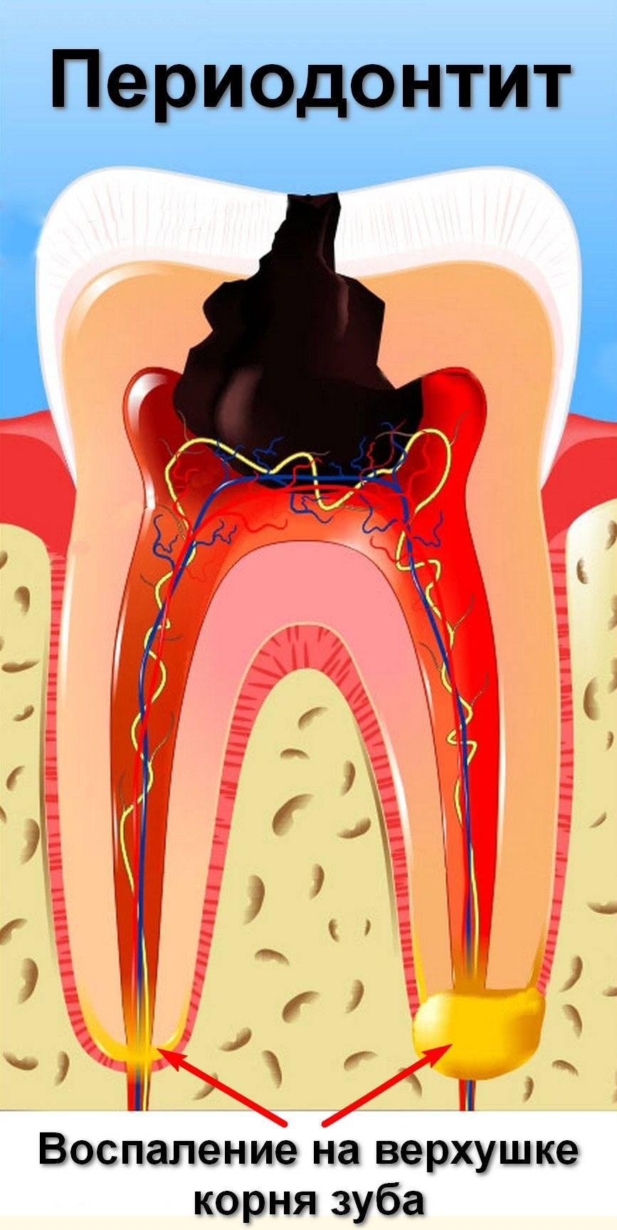 Лечение пульпита: этапы, методы и средства