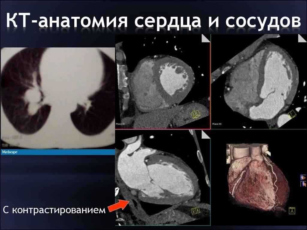 Мскт брюшной полости с контрастированием: что это такое, как делают, подготовка, что показывает, цена исследования органов с болюсным усилением, препарат тразограф