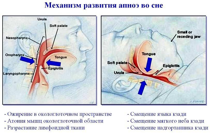 Что такое ночное апноэ у детей, его причины и методы лечения pulmono.ru что такое ночное апноэ у детей, его причины и методы лечения