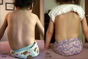 Диагноз сма: что это за болезнь, симптомы и лечение спинальной мышечной атрофии у детей и взрослых, синдром сма 1, 2 и 3 типа