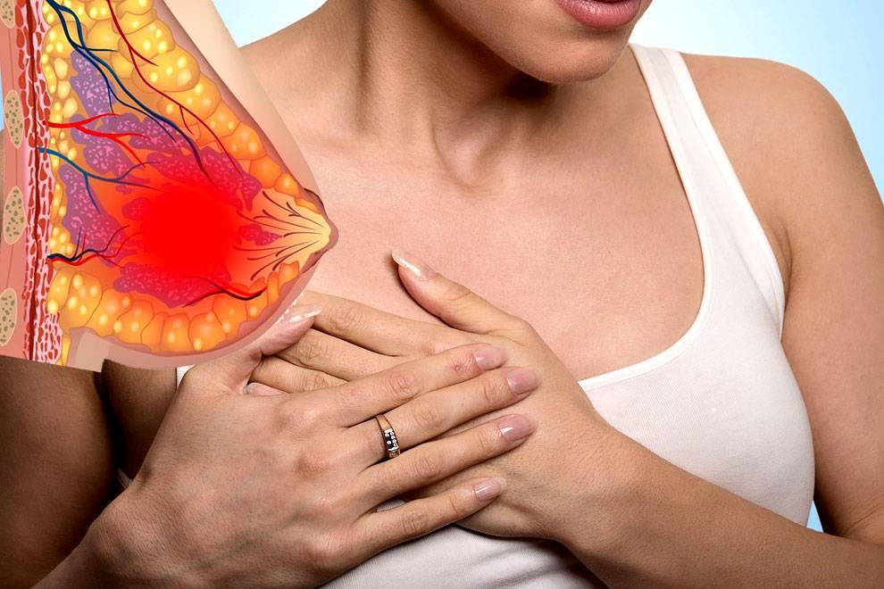 Фиброзно-кистозная мастопатия в период климакса: признаки патологии и лечение молочных желез