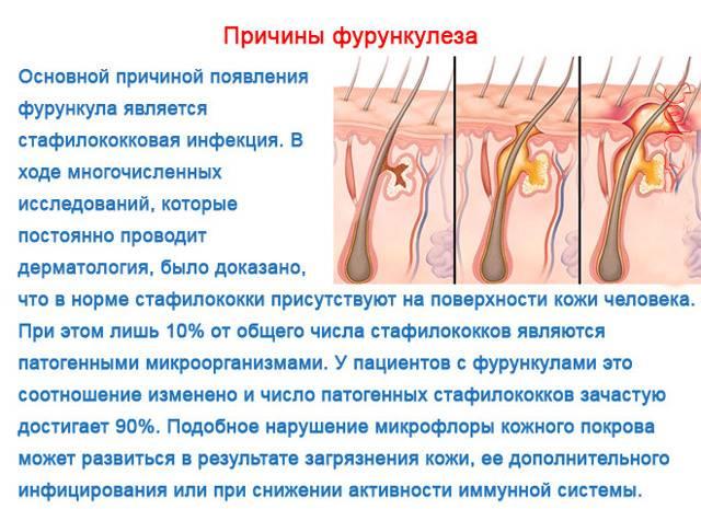 Фурункул под мышкой: фото, лечение чирея (нарыва)