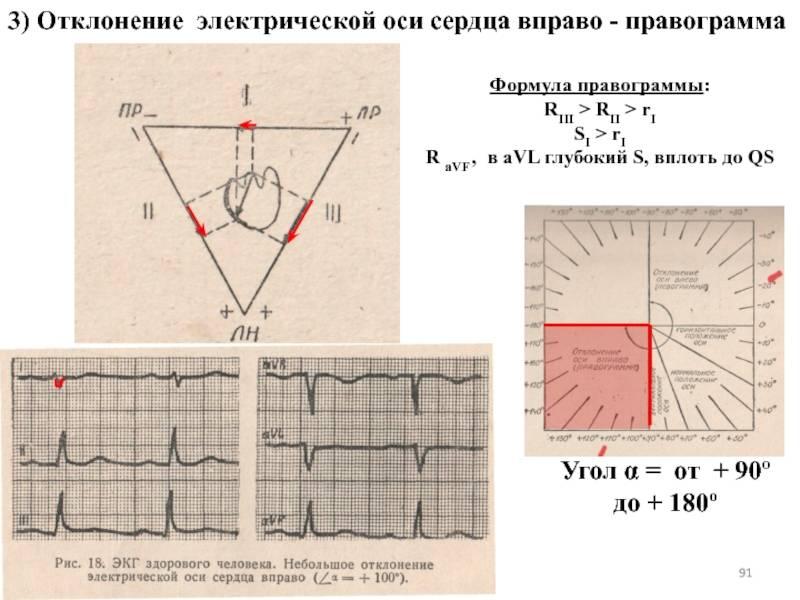 Электрическая ось сердца - здоров.сердцем