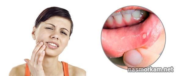 Болит ухо: причины, как проявляется ушная боль, что делать