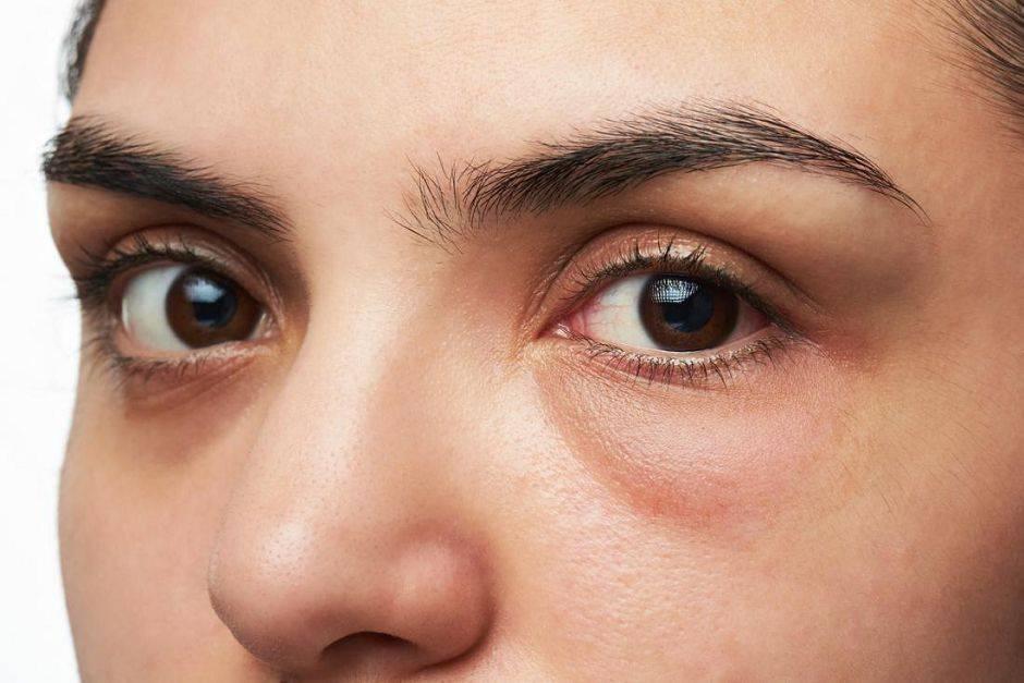 Причины отечности глаз по утрам после сна и способы лечения