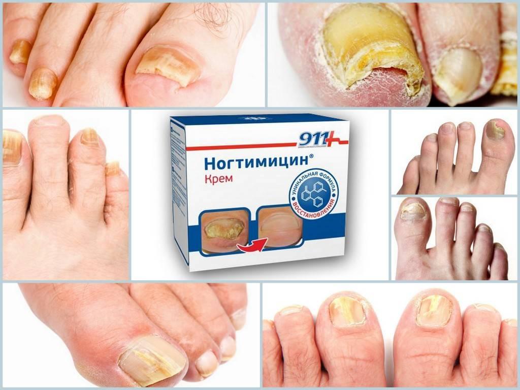 Грибок ногтей: лечение, препараты (недорогие, но эффективные)