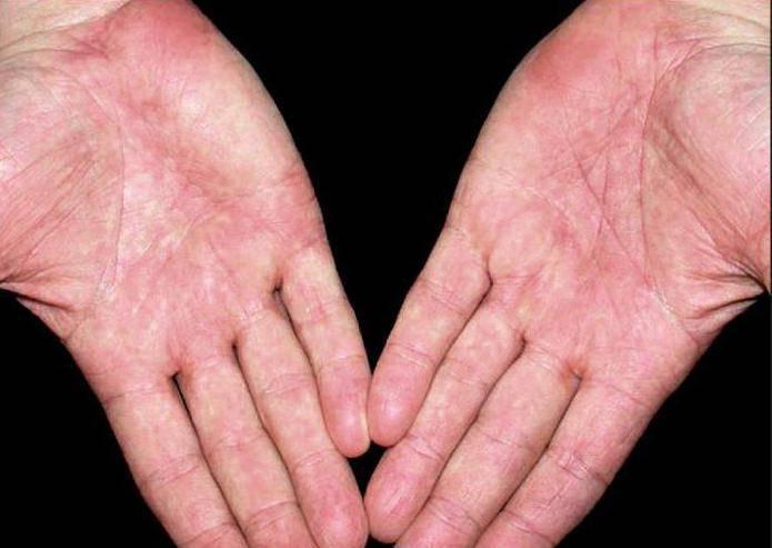 Многоформная экссудативная эритема: симптомы, фото, лечение