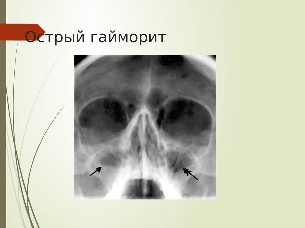 Глава. 4 одонтогенные верхнечелюстные синуситы.