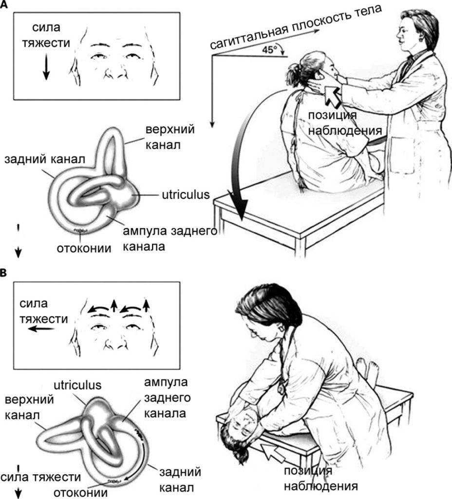 Маневр эпли в качестве лфк при доброкачественном пароксизмальном позиционном головокружении