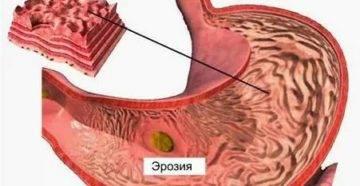 Чем заменить кардиомагнил при гастрите