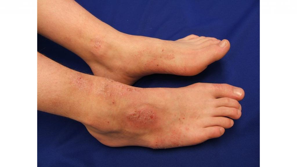 Мазь от экземы на ногах - самые эффективные средства для лечения