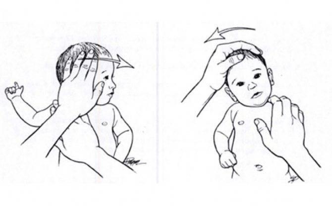 Гипотонус мышц у грудного ребенка