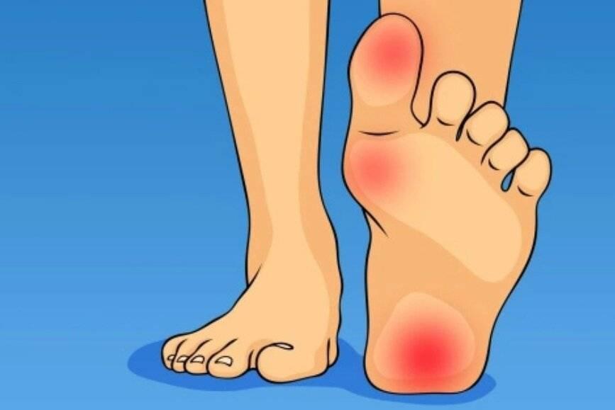Болит пятка и больно наступать: причины, как лечить боль при наступании