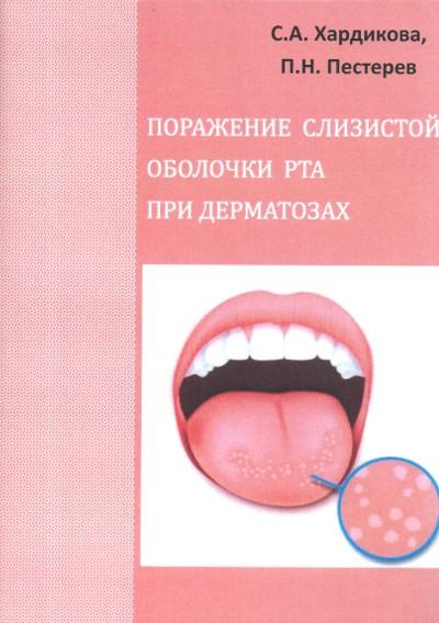 Вирусные заболевания слизистой оболочки полости рта