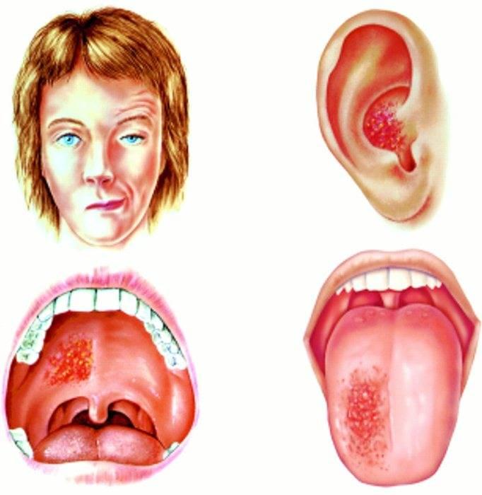 Острый герпетический стоматит: причины, симптомы, лечение