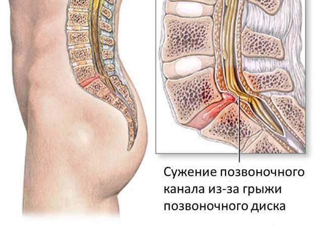 Синдром конского хвоста: развитие, признаки, лечение, профилактика