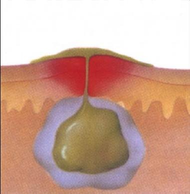 Причины появления фурункулов с локализацией под мышкой