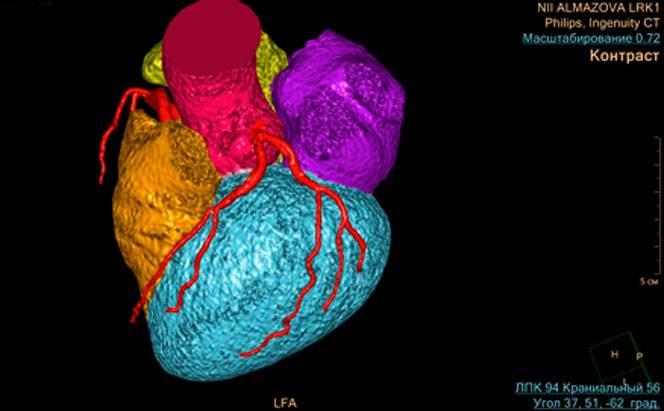 Кт с контрастом по выгодной цене в москве, компьютерная томография с контрастом в цкб ран