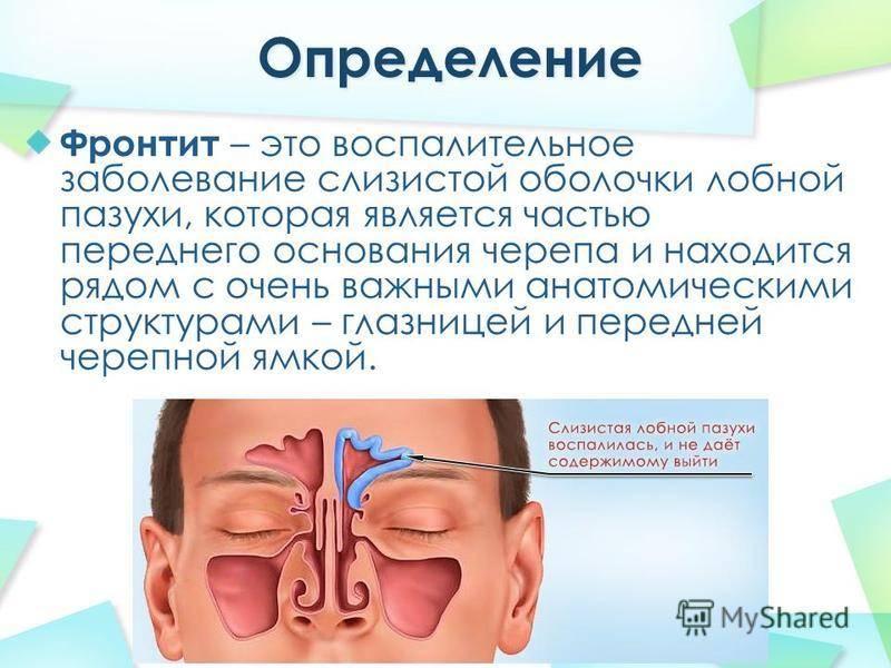 Катаральный синусит: что это такое, симптомы, лечение pulmono.ru катаральный синусит: что это такое, симптомы, лечение