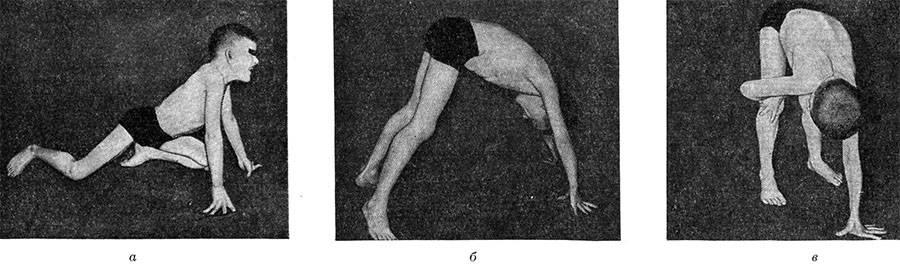 Спинальная мышечная атрофия: причины, лечение и симптомы