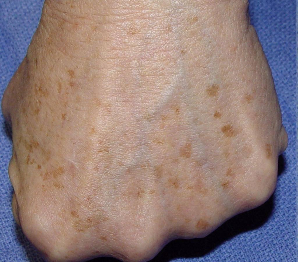 Темные пятна на теле: фото, возможные болезни, лечение