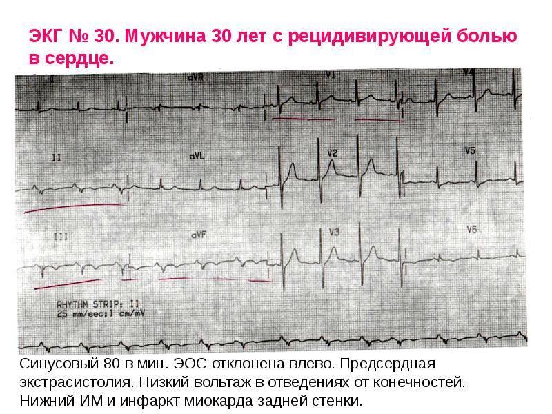 Синусовый ритм — что он может сказать о состоянии сердца? | dlja-pohudenija.ru