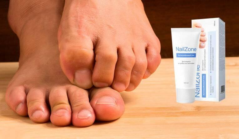 Начальная стадия грибка ногтей на ногах: фото, симптомы, лечение | zaslonovgrad.ru