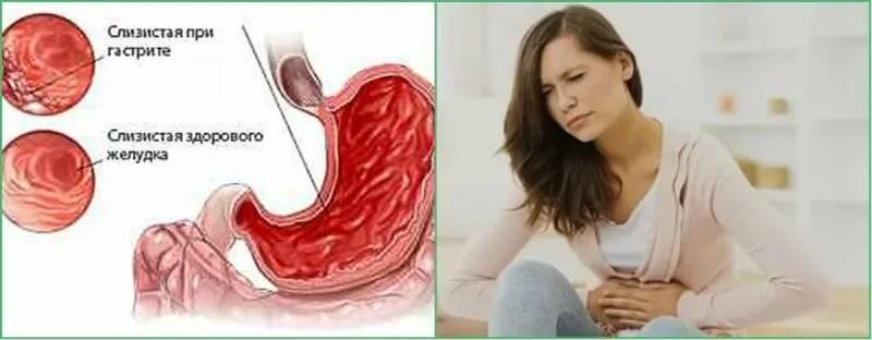 Какие симптомы и признаки гастрита?