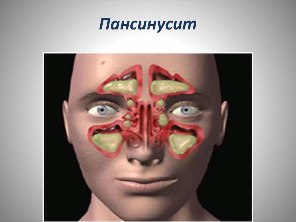 Особенности катарального синусита: диагностика и лечение