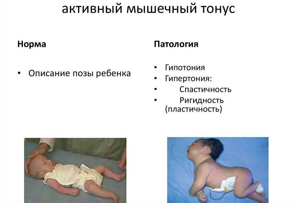 Гипотонус мышц у младенцев — симптомы слабого тонуса