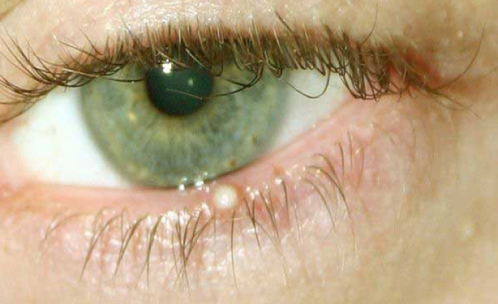 Пузырек на веке - что это, причины, лечение, последствия