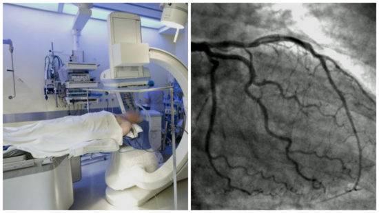 Мскт в диагностике сосудов сердца – метод, способный предупредить ишемическую болезнь