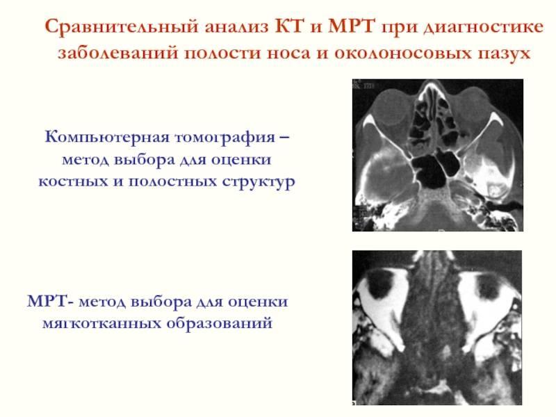 Компьютерная томография гайморовых пазух - когда применяется и что показывает?