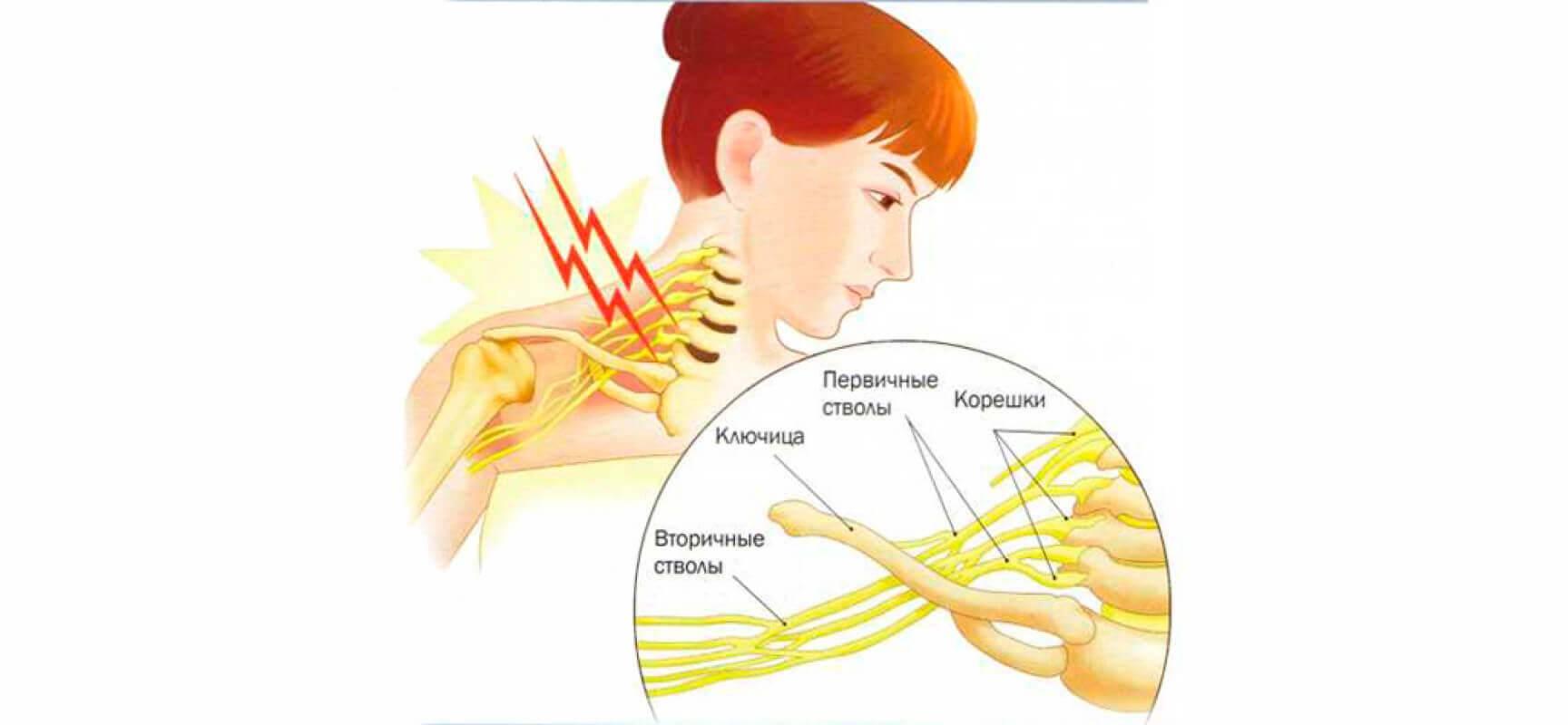 Неврит плечевого нерва: симптомы лечение