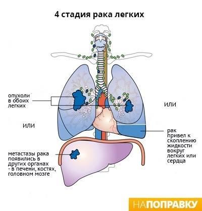 Температура при раке