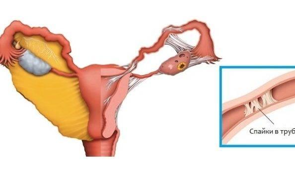Непроходимость маточных труб: причины, диагностика и лечение