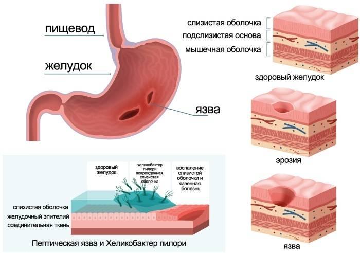 Гиперацидный гастрит: симптомы, лечение, причины возникновения