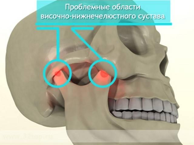 Сводит челюсти: причины спазма мышц и что делать?