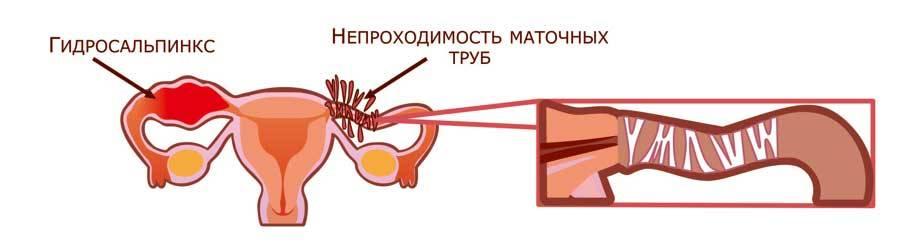 Перекрут яичника и маточной трубы. причины, симптомы, диагностика, лечение и профилактика :: polismed.com