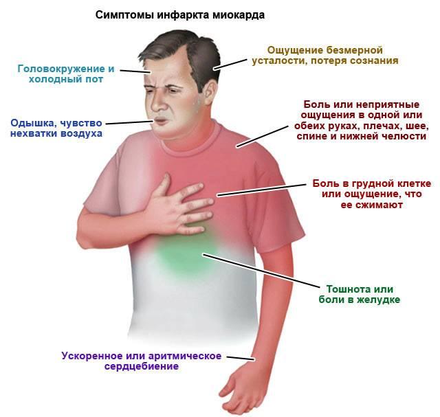 Признаки инфаркта миокарда у женщины: симптомы, прединфаркт, первые, старше 50 лет, предвестники, причины, лечение